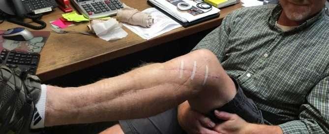 post leg surgery in office